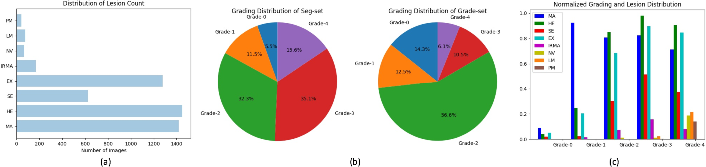 Figure 4 for A Benchmark for Studying Diabetic Retinopathy: Segmentation, Grading, and Transferability