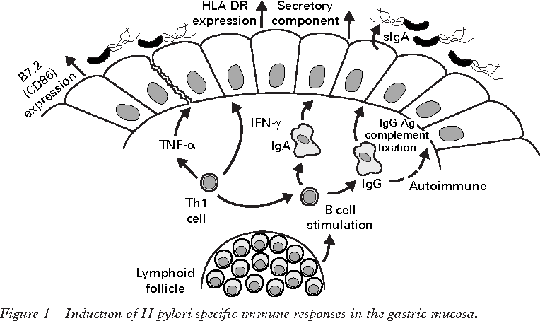 Figure 1 Induction of H pylori specific immune responses in the gastric mucosa.