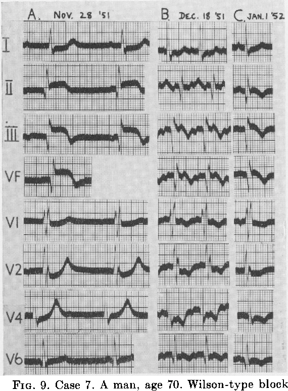 FIG. 9. Case 7. A m with complete A-V bl farction (A). Wilson v: (B). Sinus rhythm ar infarction (V2-V6) den