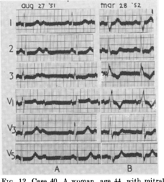FIG. 12. Case 40. A woman, age 44, with mitral stenosis. A-V block (2:1) with normal QRS at a ventricular rate of 38 (A). Wilson form of block with normal A-V conduction at a rate of 68 (B).