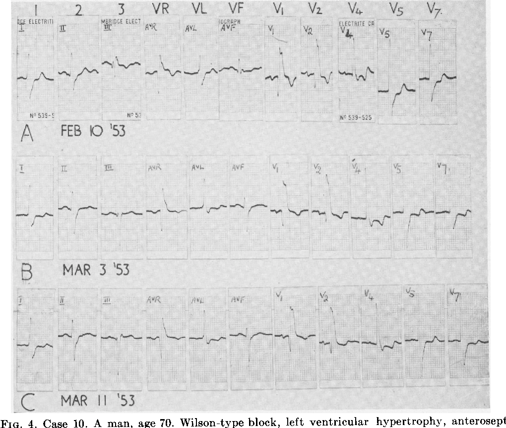 FIG. 4. Case 10. A man, age 70. Wilson-type block, left ventricular hypertrophy, anteroseptal infarction (A). Partial electrocardiographic recovery (B) and (C).