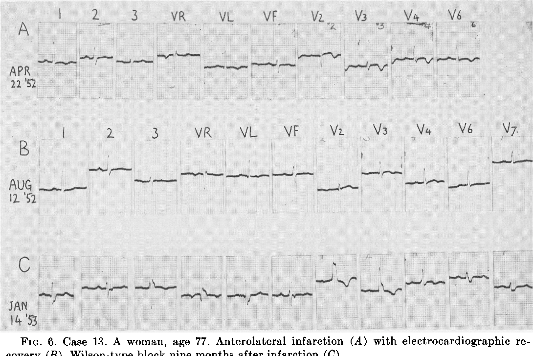 FIG. 6. Case 13. A woman, age 77. Anterolateral infarction (A) with electrocardiographic recovery (B). Wilson-type block nine months after infarction (C).
