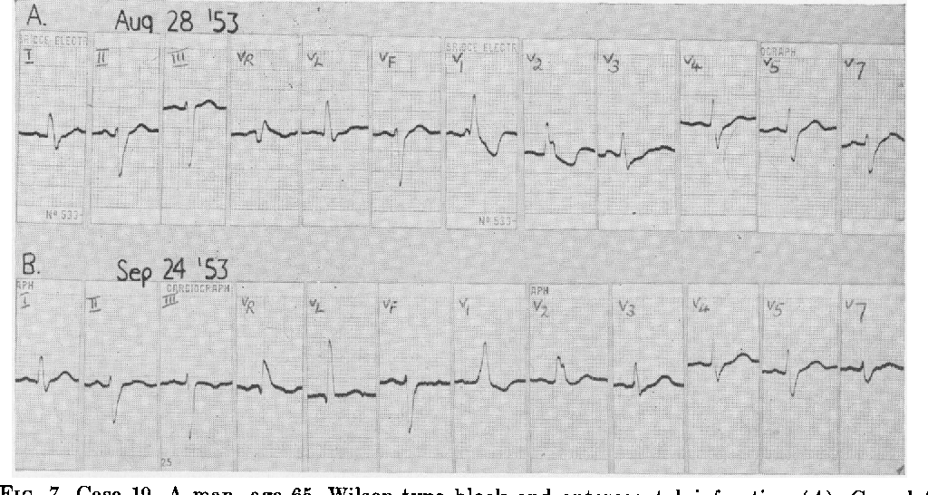 FIG. 7. Case 19. A man, age 65. Wilson-type block and anteroseptal infarction (A). Complete regression of infarction pattern one month later (B).