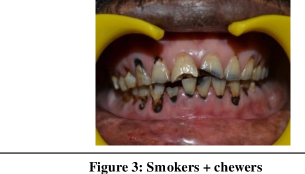 PDF] PREVALENCE OF CARIES AND NON-CARIOUS LESIONS IN SMOKELESS AND