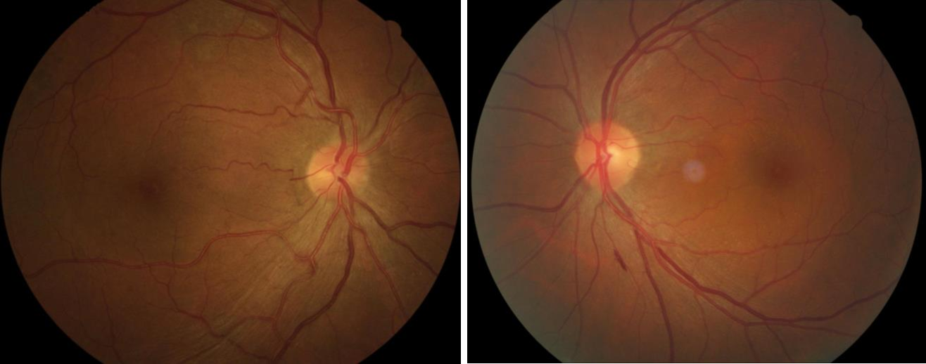 Figure 1 for Assessment of central serous chorioretinopathy (CSC) depicted on color fundus photographs using deep Learning