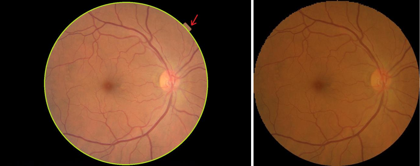 Figure 3 for Assessment of central serous chorioretinopathy (CSC) depicted on color fundus photographs using deep Learning