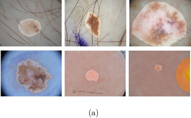 Figure 1 for Cascaded Context Enhancement for Automated Skin Lesion Segmentation