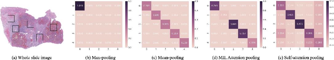 Figure 3 for TransMIL: Transformer based Correlated Multiple Instance Learning for Whole Slide Image Classication