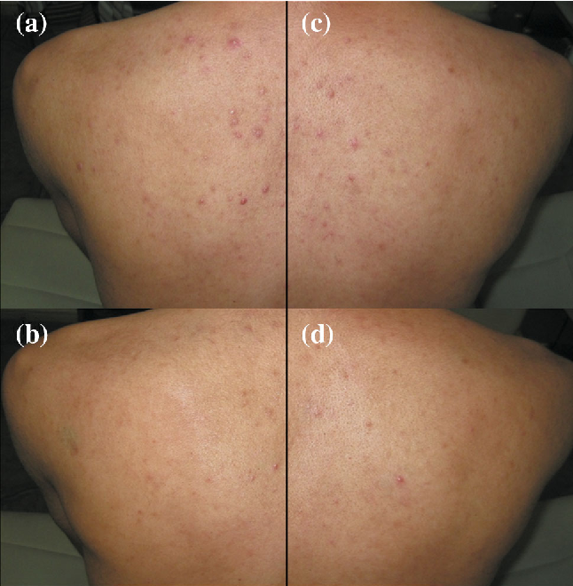 Fig. 1 LMB-PDT side before and after treatment (a, b), IPL-treated side before and after treatment (c, d). The PDT-treated side improved from grade 4 to grade 2 (moderate improvement) and lesion counts decreased by 71 %. The IPL side improved from grade 4 to grade 2 (moderate improvement) and lesion counts decreased by 48 %