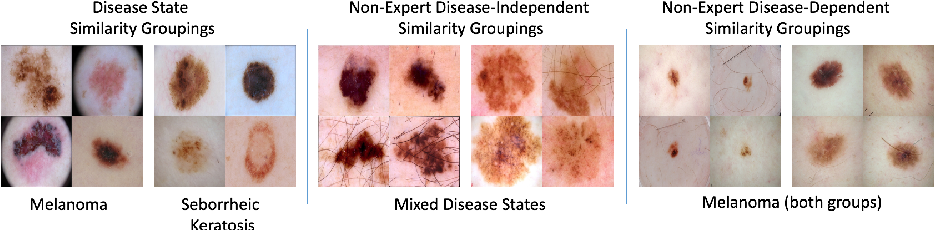 Figure 3 for Collaborative Human-AI (CHAI): Evidence-Based Interpretable Melanoma Classification in Dermoscopic Images