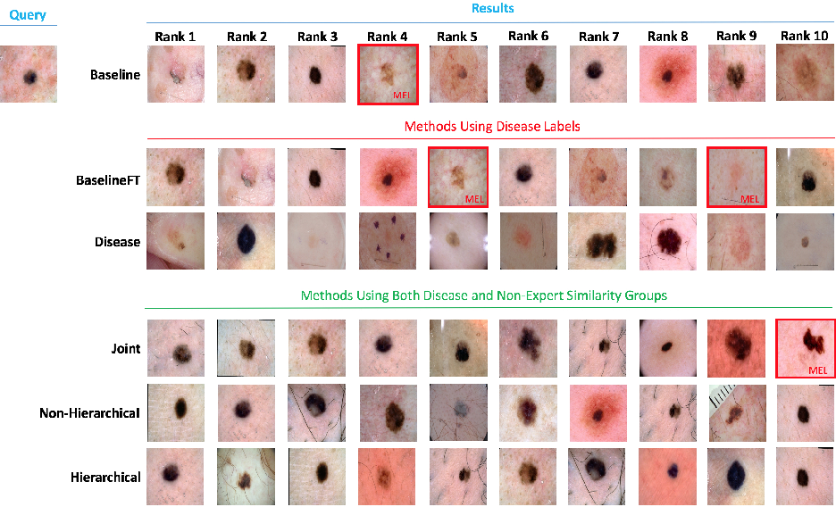 Figure 4 for Collaborative Human-AI (CHAI): Evidence-Based Interpretable Melanoma Classification in Dermoscopic Images