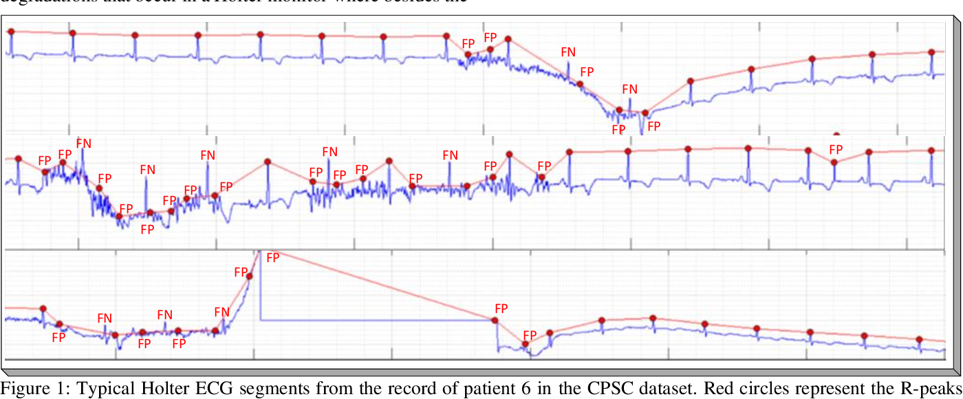 Figure 1 for Robust Peak Detection for Holter ECGs by Self-Organized Operational Neural Networks