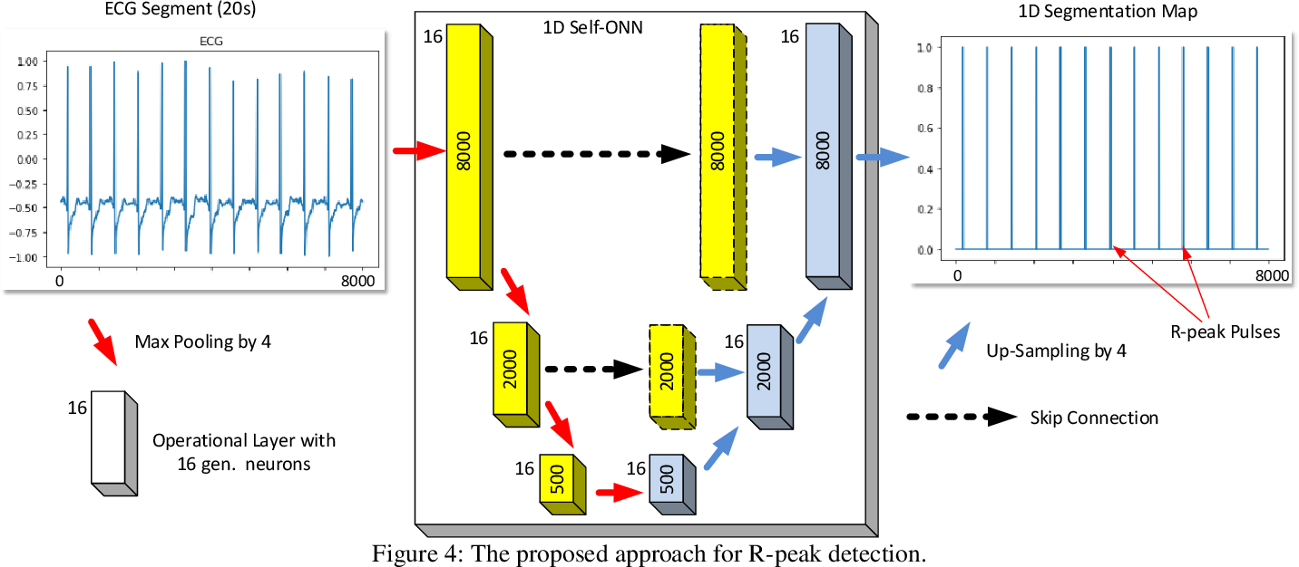 Figure 4 for Robust Peak Detection for Holter ECGs by Self-Organized Operational Neural Networks