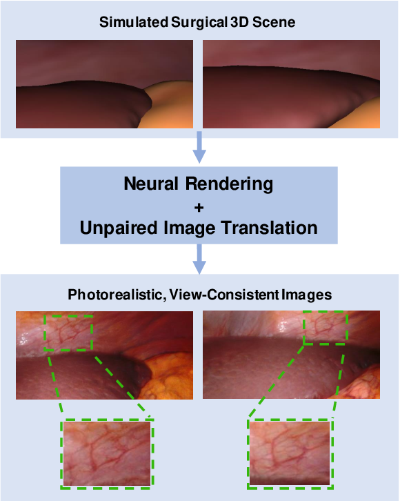 Figure 1 for Long-Term Temporally Consistent Unpaired Video Translation from Simulated Surgical 3D Data