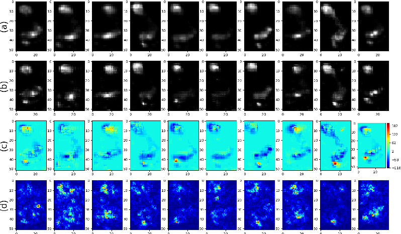 Figure 4 for N2RPP: An Adversarial Network to Rebuild Plantar Pressure for ACLD Patients