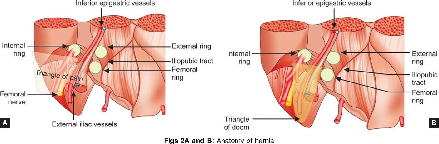 Tissue Glue in Laparoscopic Inguinal Hernia Repair : A Retrospective ...