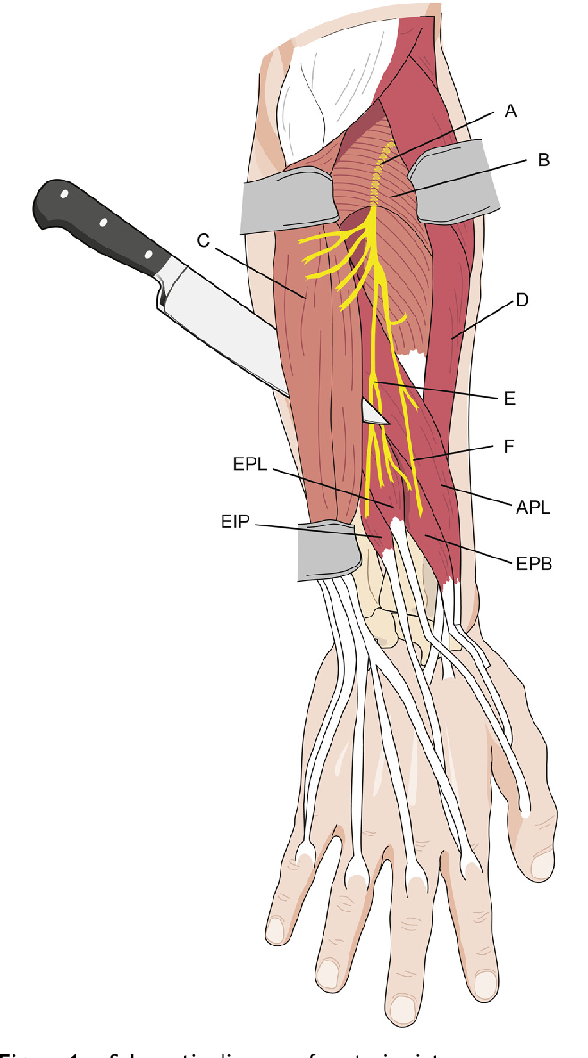 Extensor Digiti Minimi Transfer For Thumb Extension Semantic Scholar