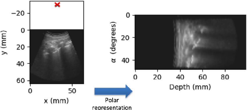 Figure 4 for B-line Detection in Lung Ultrasound Videos: Cartesian vs Polar Representation
