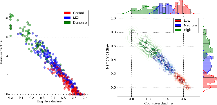 Figure 1 for Learning the progression and clinical subtypes of Alzheimer's disease from longitudinal clinical data