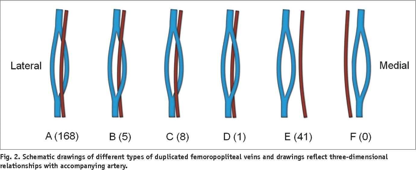 Three Dimensional Evaluation Of The Anatomic Variations Of The