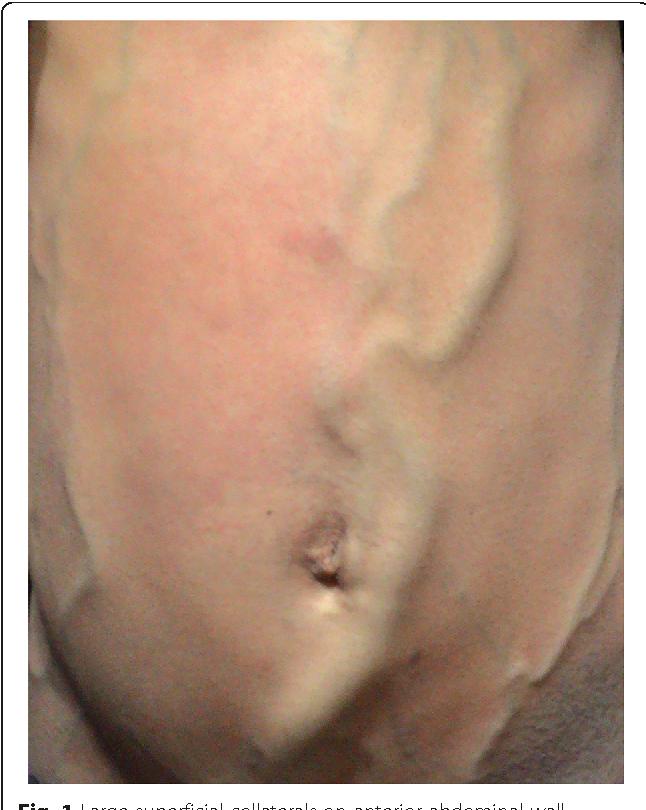 Congenital Absence Of Infrarenal Inferior Vena Cava And Deep Veins
