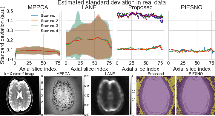 Figure 3 for Automatic, fast and robust characterization of noise distributions for diffusion MRI