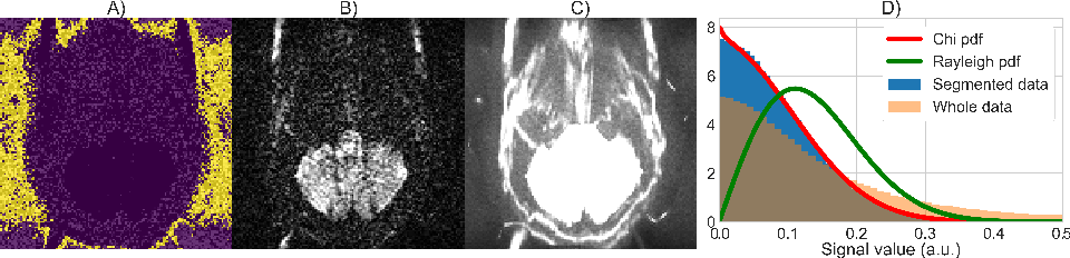 Figure 4 for Automatic, fast and robust characterization of noise distributions for diffusion MRI