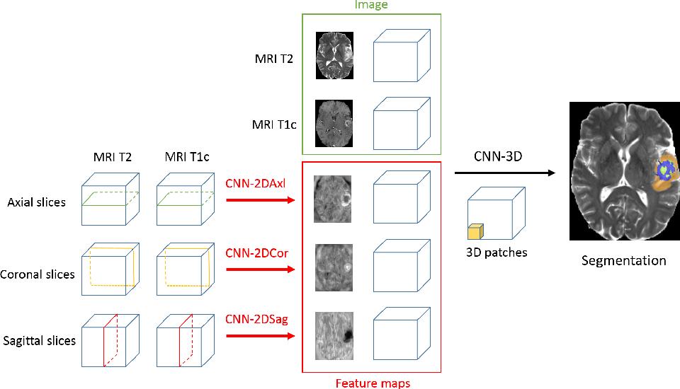 Figure 3 for 3D Convolutional Neural Networks for Tumor Segmentation using Long-range 2D Context