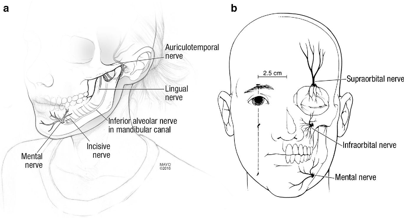 Figure 1 from Numb Chin Syndrome - Semantic Scholar