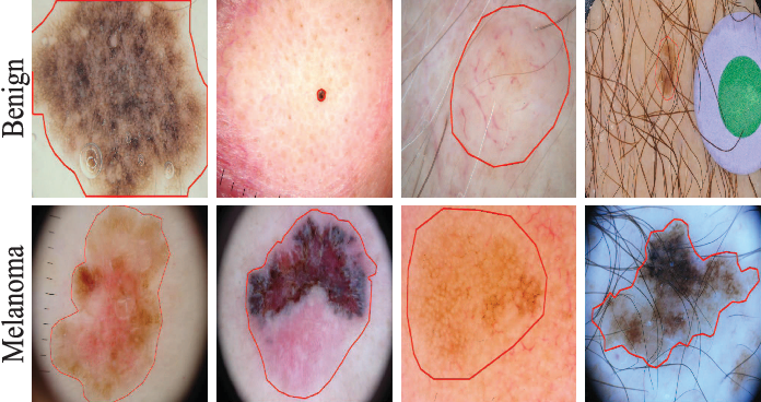 Figure 1 for Bi-directional Dermoscopic Feature Learning and Multi-scale Consistent Decision Fusion for Skin Lesion Segmentation