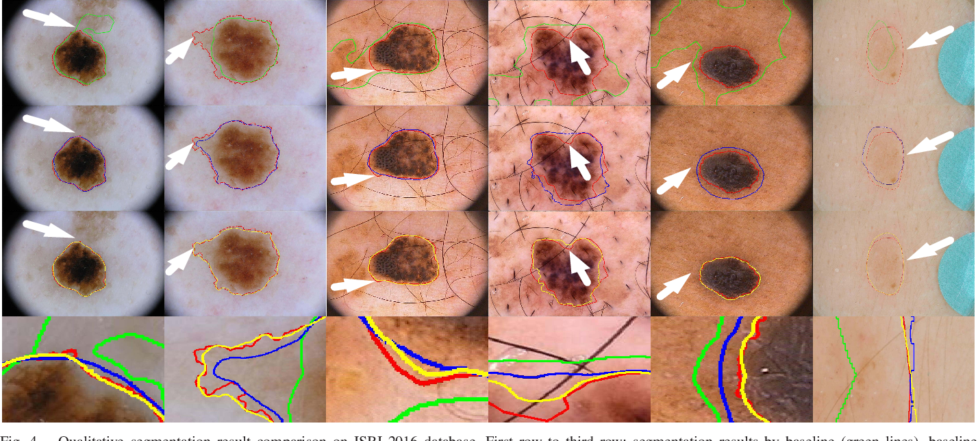 Figure 4 for Bi-directional Dermoscopic Feature Learning and Multi-scale Consistent Decision Fusion for Skin Lesion Segmentation