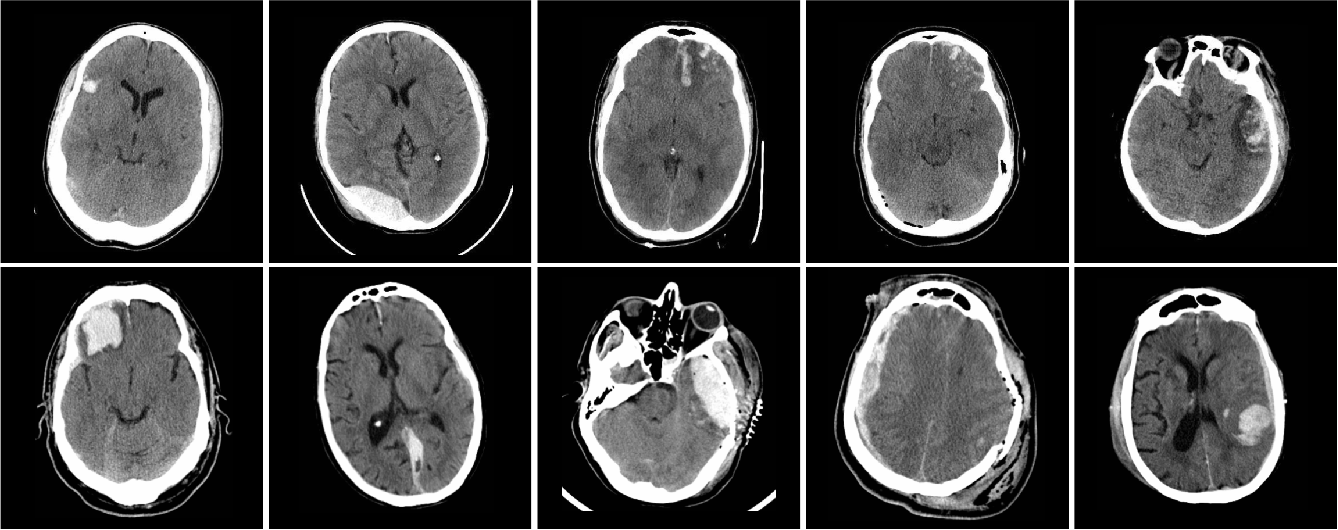 Figure 1 for Distributed deep learning for robust multi-site segmentation of CT imaging after traumatic brain injury