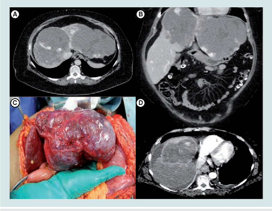 Figure 4 Preoperative Ct Scan Of A 54 Year Old Female Patient With