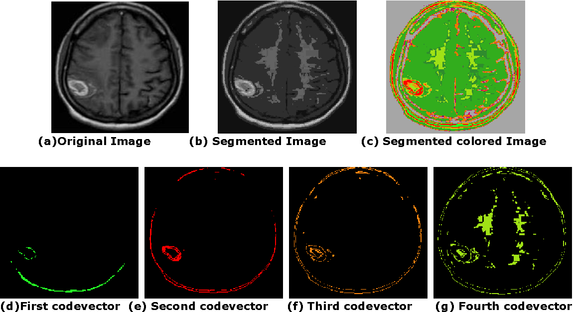 3b220f472109 Figure 5.37 from 5. Vector Quantization Based Segmentation ...
