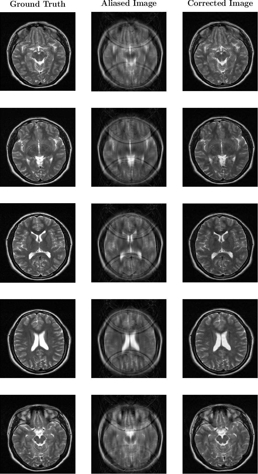 Figure 5 from Deep learning for undersampled MRI reconstruction