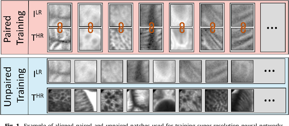 Figure 1 for Adversarial training with cycle consistency for unsupervised super-resolution in endomicroscopy