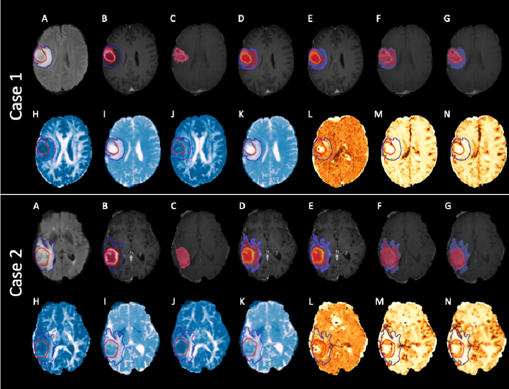 Figure 4 for Expectation-Maximization Regularized Deep Learning for Weakly Supervised Tumor Segmentation for Glioblastoma