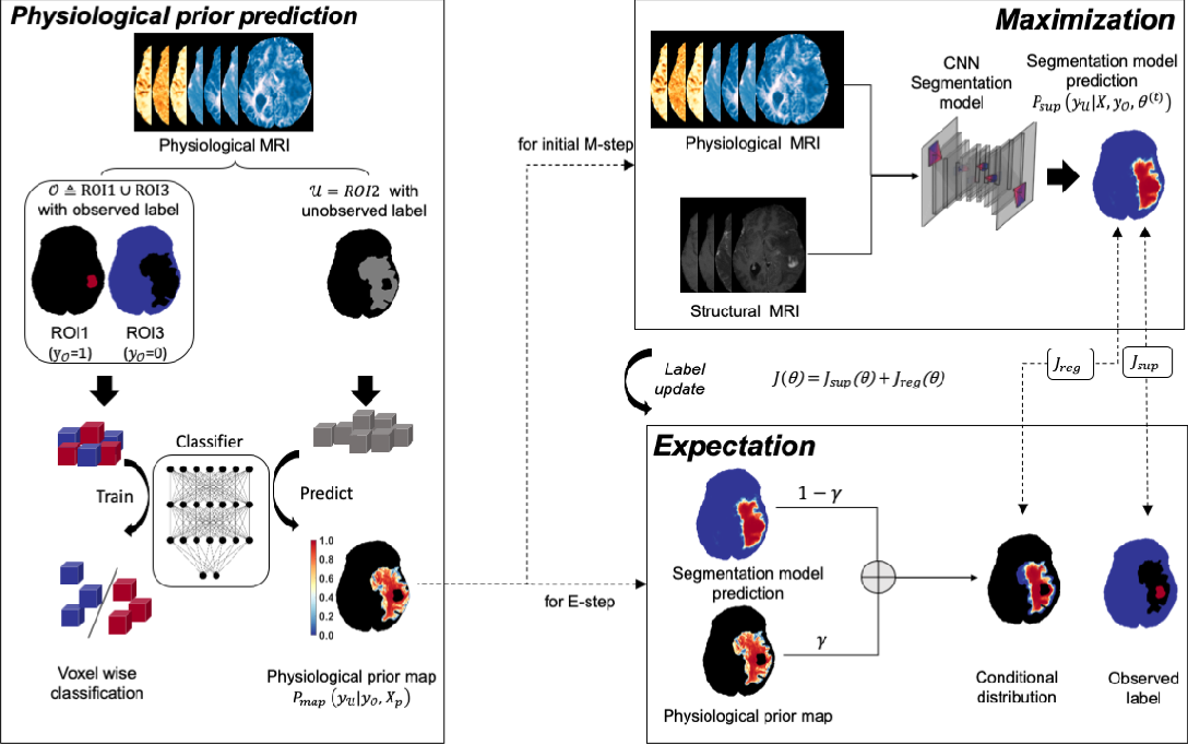 Figure 1 for Expectation-Maximization Regularized Deep Learning for Weakly Supervised Tumor Segmentation for Glioblastoma