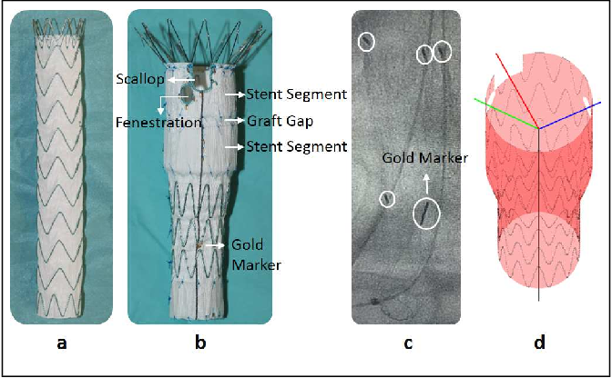 Figure 1 for Real-time 3D Shape Instantiation from Single Fluoroscopy Projection for Fenestrated Stent Graft Deployment
