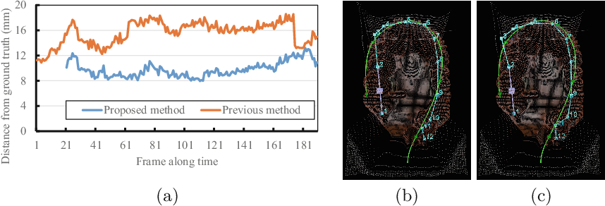Figure 4 for Colon Shape Estimation Method for Colonoscope Tracking using Recurrent Neural Networks