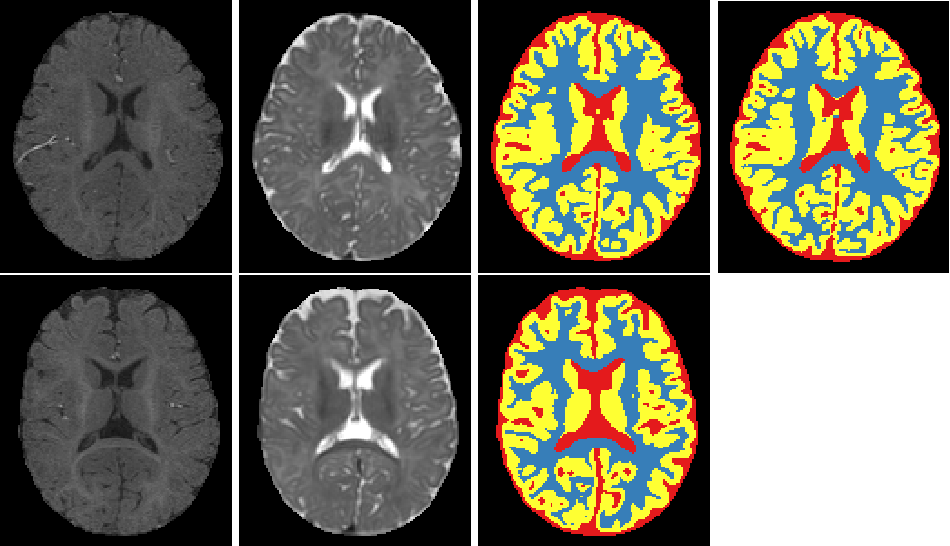 Figure 2 for Isointense infant brain MRI segmentation with a dilated convolutional neural network