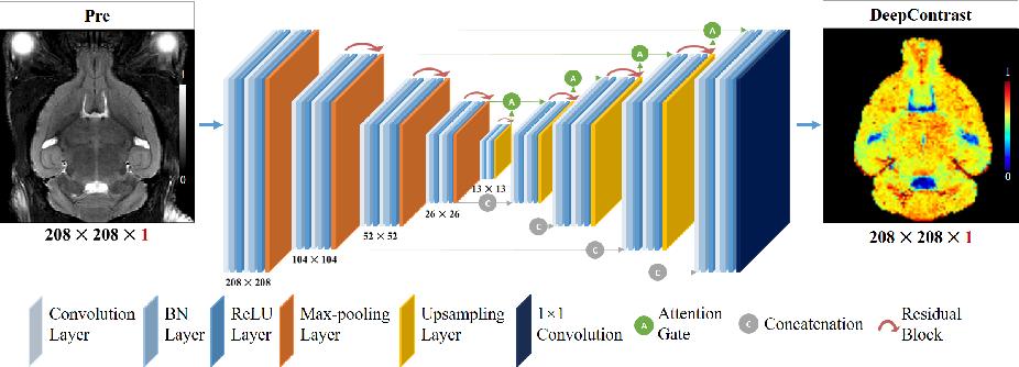 Figure 2 for Substituting Gadolinium in Brain MRI Using DeepContrast