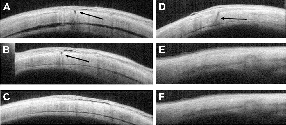 Figure 3 anterior segment OCT images of sclerotomies. Notes: (A–C) OCT images of sclerotomies of patients with straight incisions at 1, 3, and 10 days postoperatively. (A and B) Significant gaps (arrows) in the sclera are visible as hyporeflective areas 1 and 3 days postoperatively. (C) However, the hyporeflective area is not observed in the sclera 10 days postoperatively. (D–F) OCT images of sclerotomies of patients with angled incisions 1, 3, and 10 days postoperatively. (D) A significant gap (arrow) in the sclera is visible as a hyporeflective area 1 day postoperatively. (E and F) however, no gap in the sclera is observed from 3 days postoperatively. Abbreviation: OCT, optical coherence tomography.