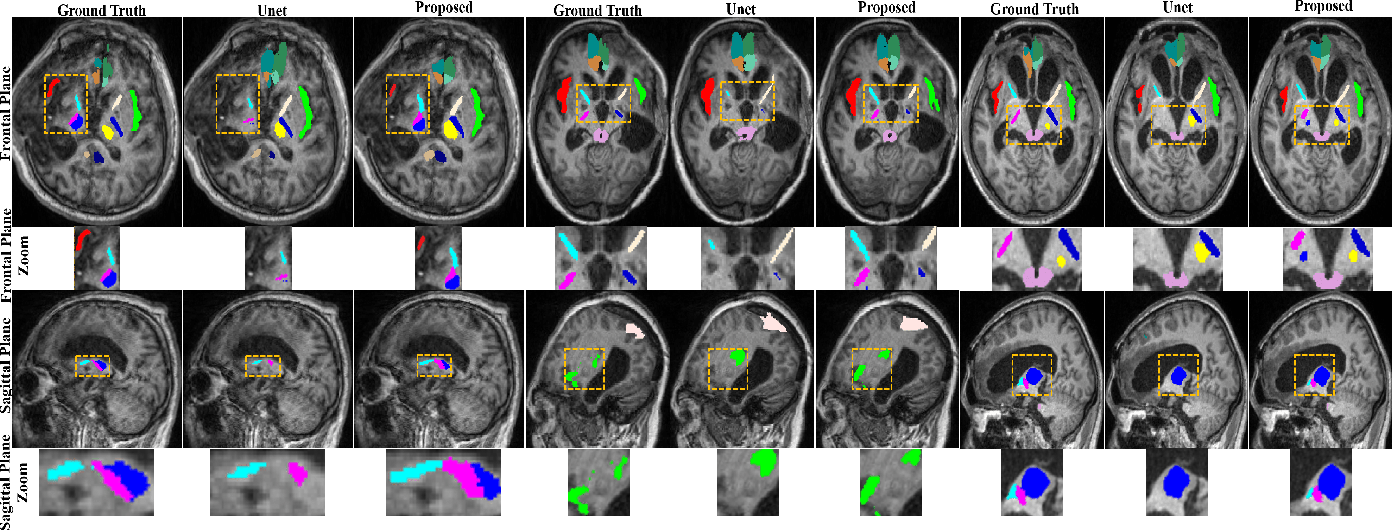 Figure 3 for Robust Brain Magnetic Resonance Image Segmentation for Hydrocephalus Patients: Hard and Soft Attention