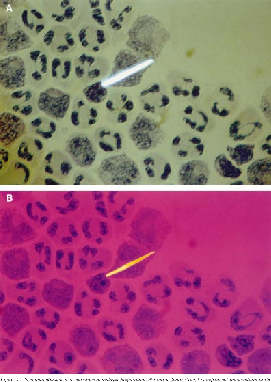 Figure 1 from [Diff-Quik(R) staining method for detection and