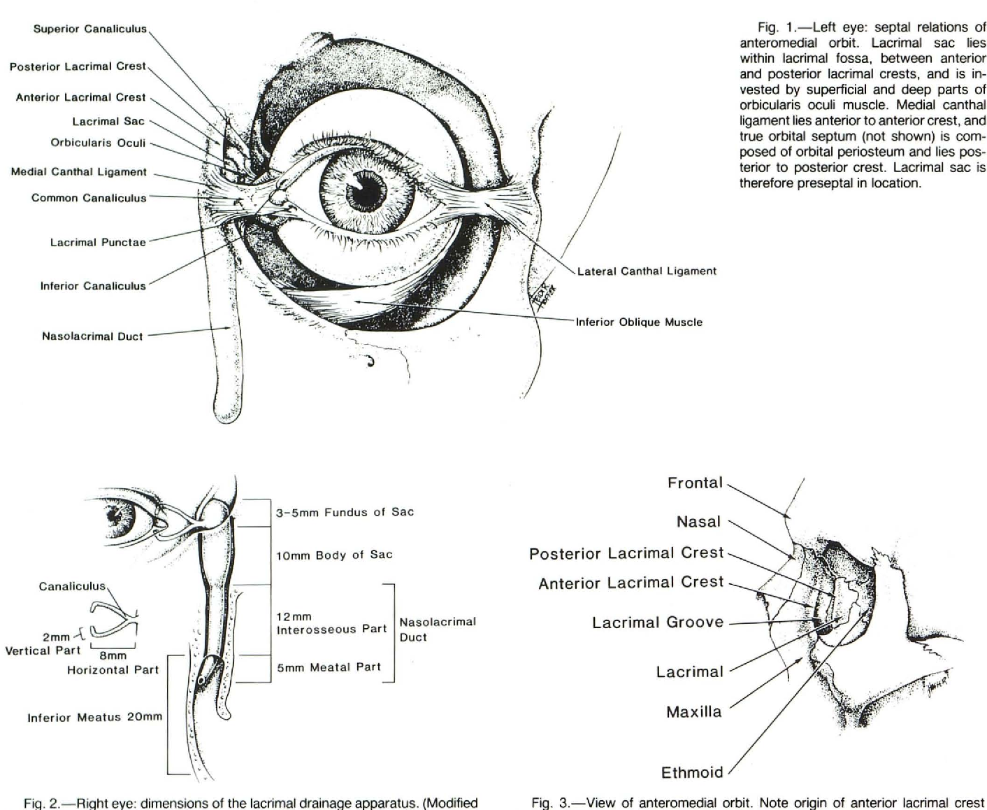 CT of the inferomedial orbit and the lacrimal drainage apparatus ...