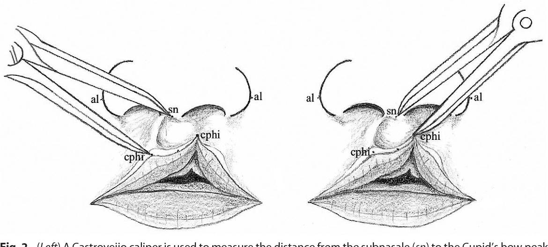Minor-form, microform, and mini-microform cleft lip: anatomical ...