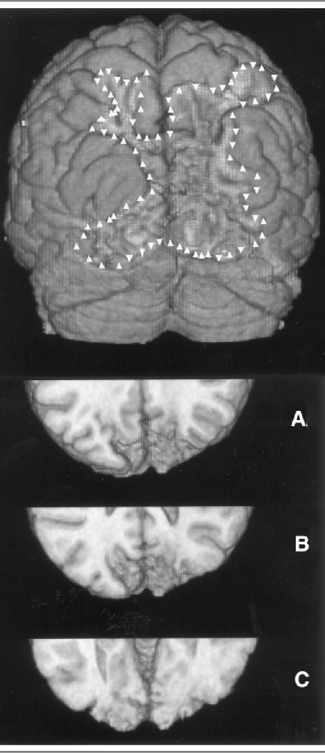 Fig 1. (top) Three-dimensional surface rendering of the occipital poles of the patient. The microgyric region is outlined. (bottom) Sections through occipital poles of the same patient correspond to those marked in Figure 2 (A, B, C).
