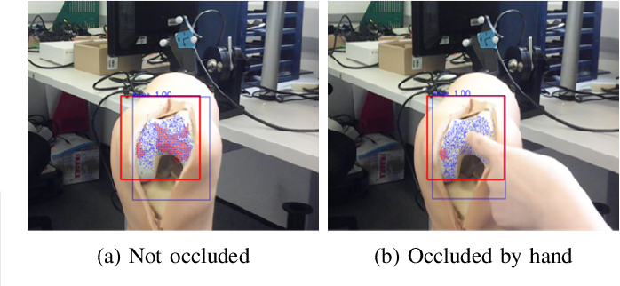 Figure 2 for Occlusion-robust Visual Markerless Bone Tracking for Computer-Assisted Orthopaedic Surgery