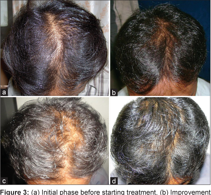 Minoxidil Mixed With Finasteride